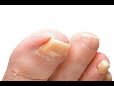 Toenail Fungus Treatment How To Treat Fast With Home Treatments You