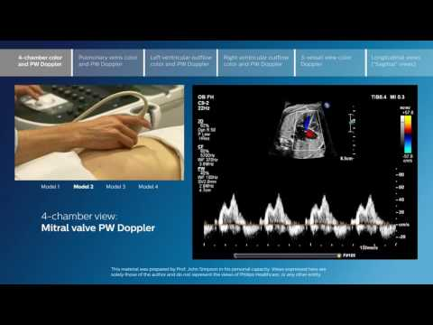Advanced screening views of the fetal heart - Part 1 - 4-chamber color and PW Doppler