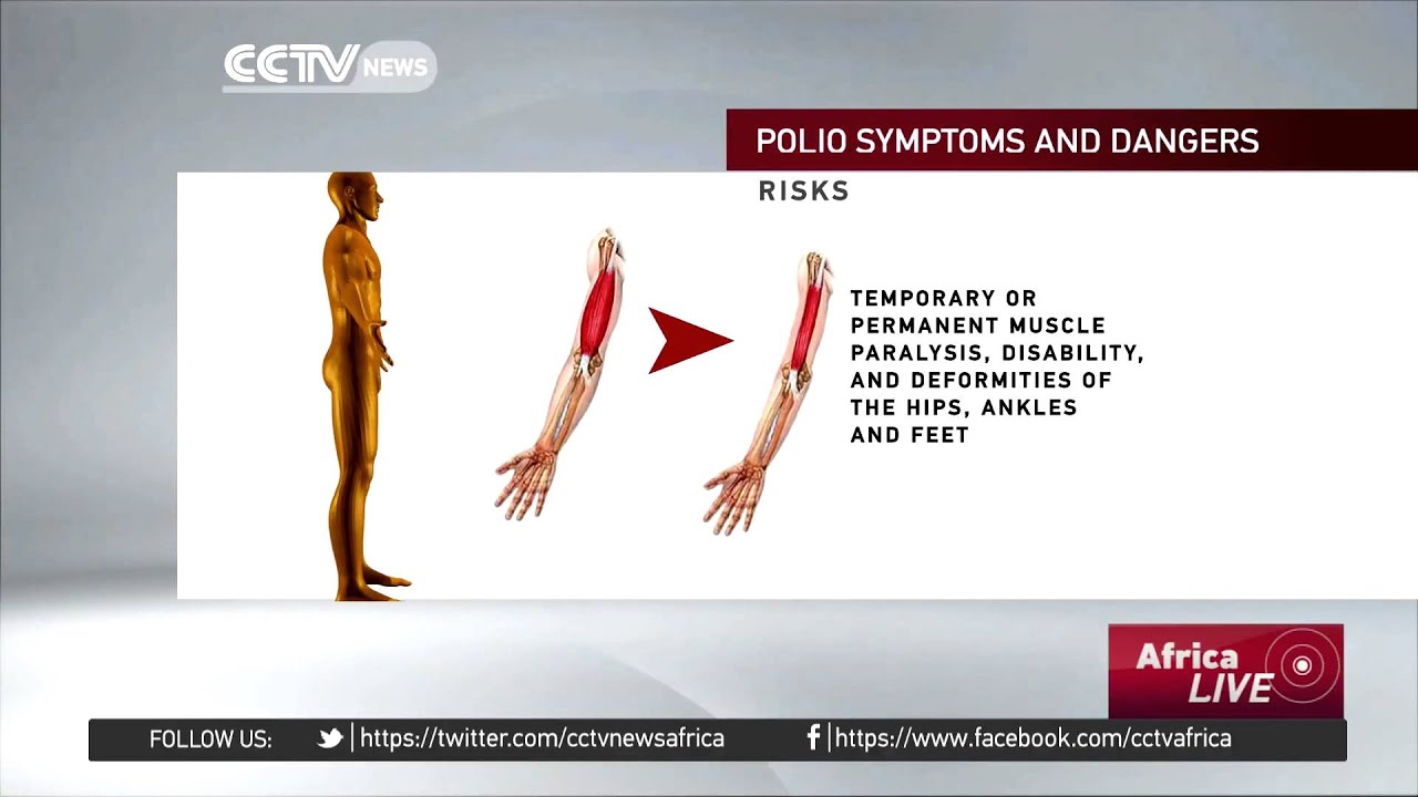 What you should know about Polio; symptoms and signs - YouTube