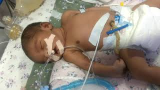 Gasping respiration of newborn on ventilator