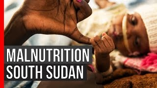 PULSE: Malnutrition in South Sudan