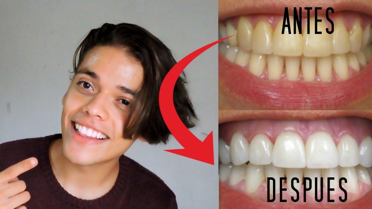 Como blanquear los dientes con bicarbonato y limon en 2 minutos