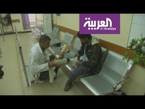 محاولات لإعادة إنتاج أطراف بشرية على غرار الديدان  - 23:21-2018 / 6 / 16