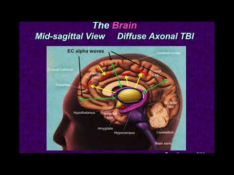 Concussion, TBI, It's Relation to Alzheimer's & CTE and Treatment with Audio Visual Entrainment