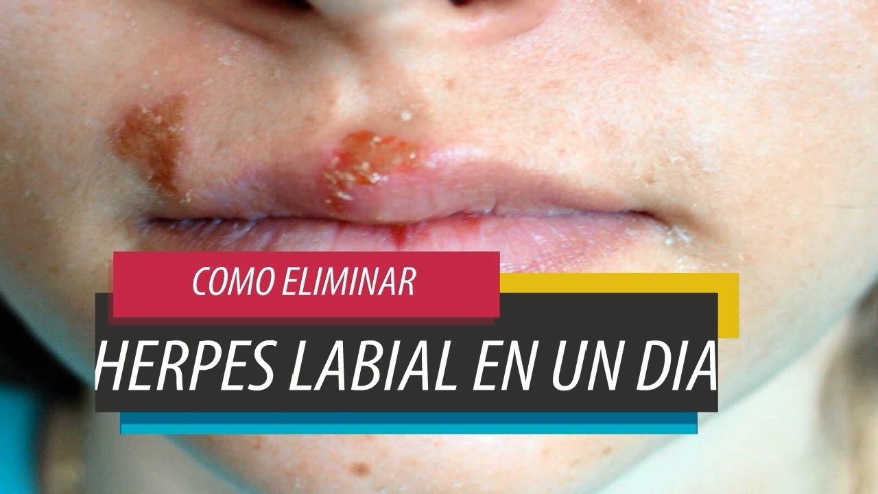 Eliminar herpes labial en un dia con bicarbonato youtube - Como se quita el gotele ...