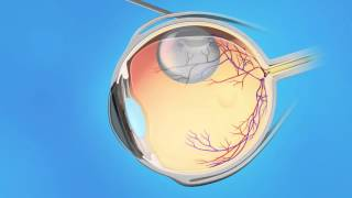 Detached Pneumatic Retinopexy by Retina Consultants of Southern California