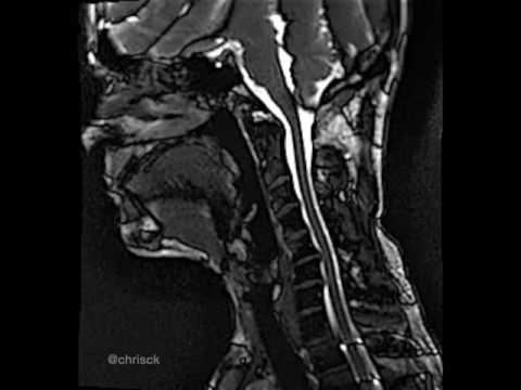 Realtime MRI of Cervical Spine - YouTube