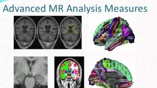 "Dr. Andrew Simmons ""Neuroimaging differences in Down's  syndrome"" Thumbnail"