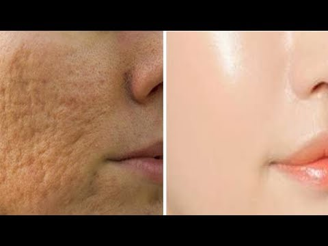 5-home-remedies-to-get-rid-of-open-pores-on-skin-naturally