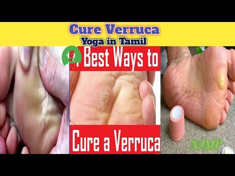 best-natural-way-to-get-rid-of-verruca-|-கால்-ஆணி-குணமாக-|-yoga-in-tamil...