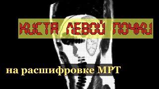 Признаки КИСТЫ ЛЕВОЙ ПОЧКИ Bosniak 1 на расшифровке МРТ брюшной полости