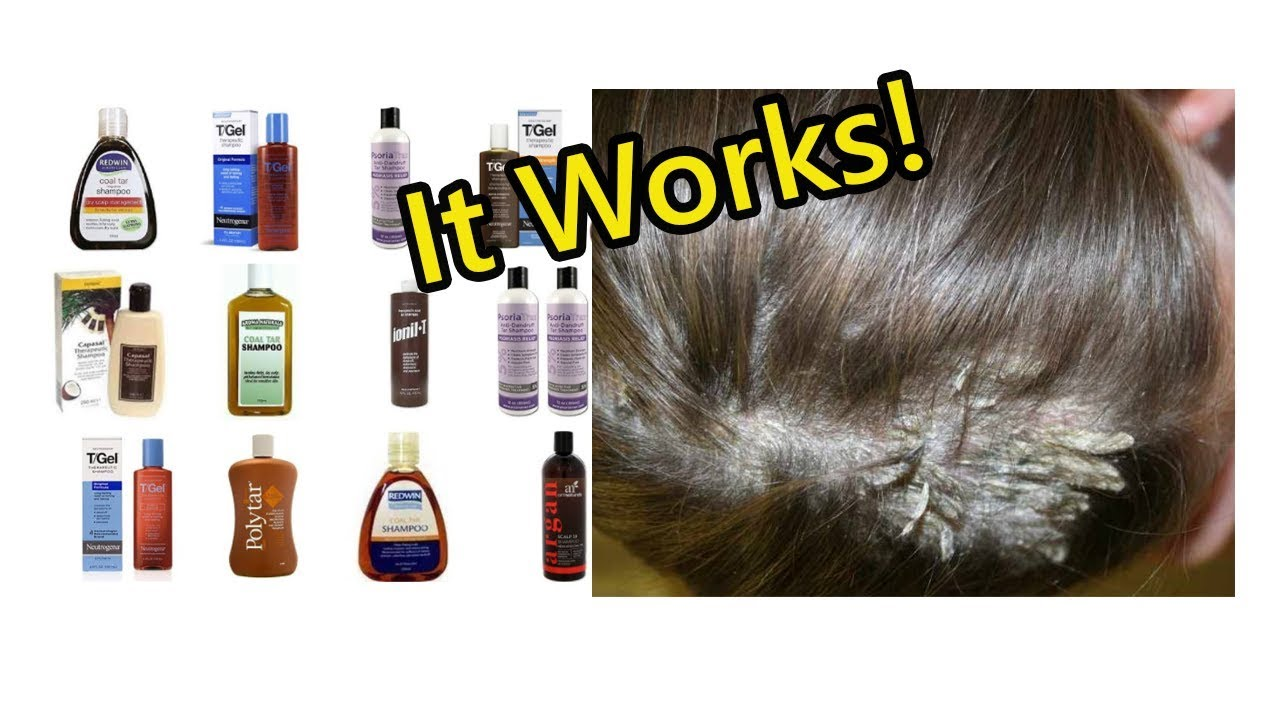 Scalp Psoriasis Shampoo - Things You Must Know Before