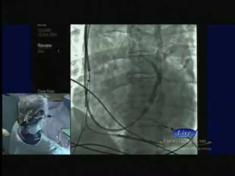 3  LV Lead implant