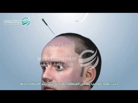 زراعة الشعر في تركيا مع زراعة 2500بصيلة بتقنية FUE في مشفى Mastering Hair