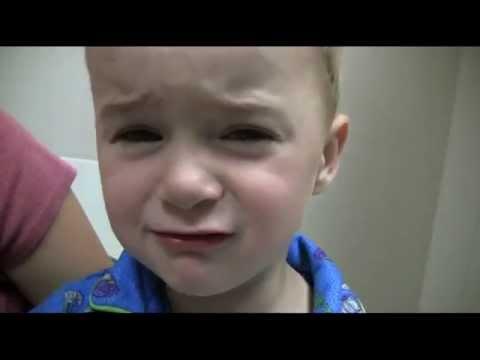 Bilateral Preauricular Lymphadenitis