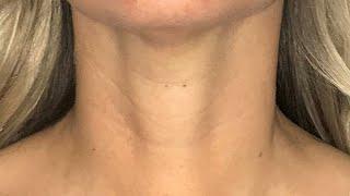 Scarless Thyroidectomy | Transoral Endoscopic Thyroidectomy Vestibular Approach