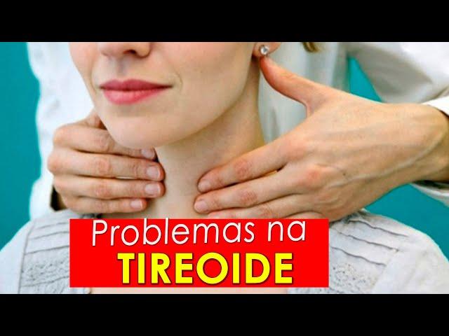 Problemas na tireoide   Como tomar o remédio   hipotireoidismo e hipertireoidismo