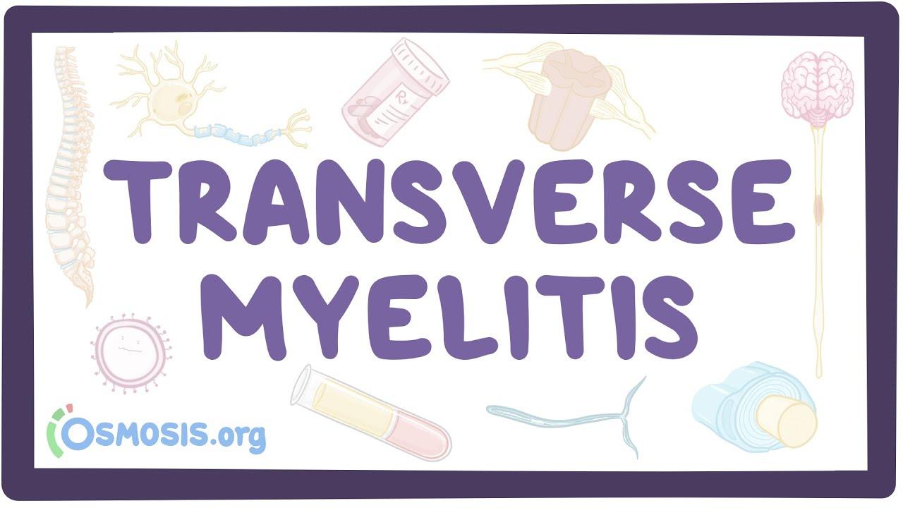 Transverse myelitis – causes, symptoms, diagnosis, treatment, pathology
