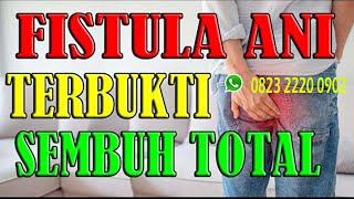 CERITA FISTULA PART 1 || OPERASI FISTULA ANI SETAHUN 2X!!.