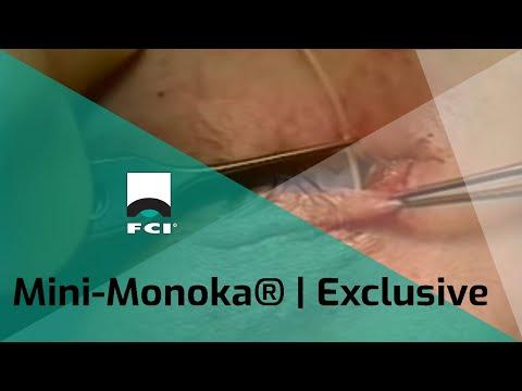 Vignette Mini-Monoka® | Monocanalicular repair | Features & Procedure