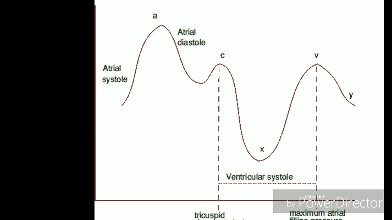 CV WAVES TRICUSPID REGURGITATION (JVP EXPLAINED) - YouTube