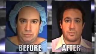Non-Surgical Chin Augmentation NYC - (212) 644-6454 - New York, NY