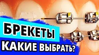 Какие выбрать брекеты? Совет ортодонта из Москвы