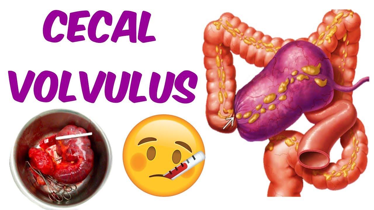 A Cecal Volvulus