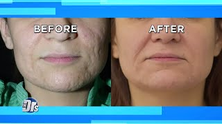 Treat Acne Scars with Lunch Break Procedure