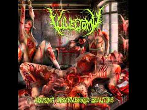 Vulvectomy - Split Thickened Vulvar Skin (Slam/brutal death metal - Drum Machine - Sevared Records)