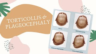 How Plagiocephaly Can be Treated & Prevented - Mayo Clinic.