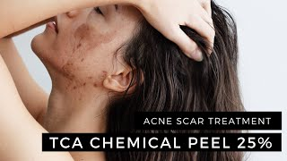 enerpeel tca chemical peel 25 2 layers acne scar treatment