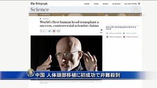 イタリア人医師と中国が人体頭部移植に初成功で非難殺到| ニュース | 新唐人|時事報道 | 海外