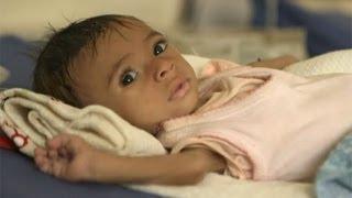 Yemen'de açlık krizi