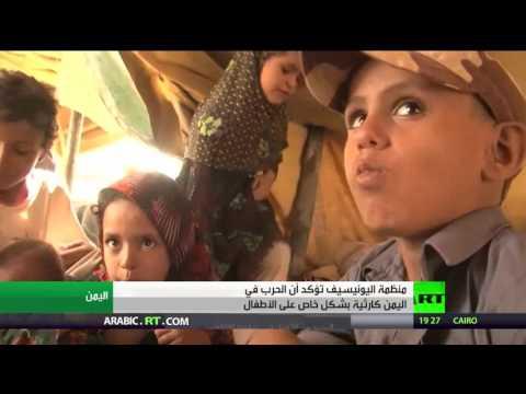 اليونيسيف: الحرب كارثية على أطفال اليمن  - 03:20-2017 / 4 / 23
