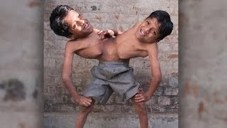 Conjoined Twins: Brothers Joined At The Hip Learn To Live In Harmony thumbnail