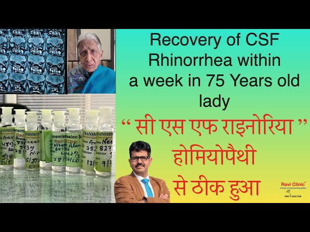 Recovery of CSF Rhinorrhea within a week in a 75 Years old lady from Bhagalpur