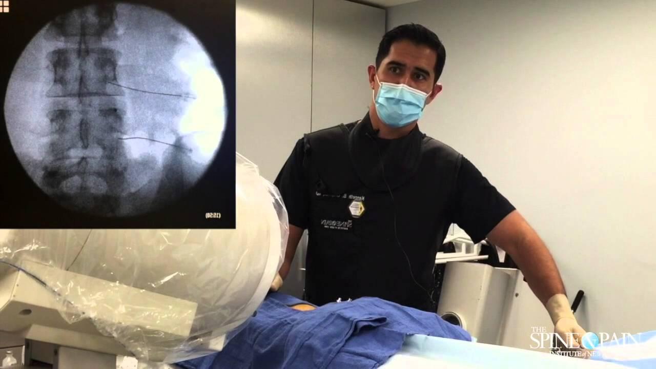 Lumbar Transforaminal Injection