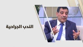 د. عمر الشوبكي - الندب الجراحية