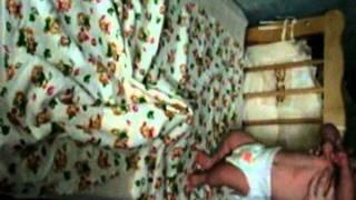 Спастическая мышечная кривошея, ишемическая энцефалопатия до и после массажа. Массаж новорожденного.