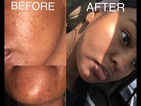 How To Clear Acne And Acne Scars Fast Before And After Results