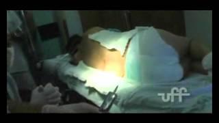 Nas após dormência epidural costas