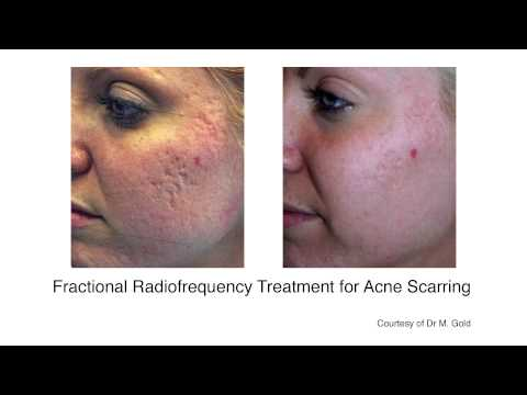 acne-treatment-|-acne-scar-|-scarring-removal-cardiff-|-london-|-united-kingdom