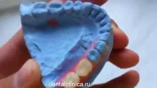 Лечение зубов красивая улыбка виниры коронки протезирование имплантация приятные цены(Клиника European Clinic of Aesthetic Dentistry http://dentalclinica.ru Стоматологическое лечение обойдется Вам в сумму, которая до..., 2014-03-25T19:49:55.000Z)