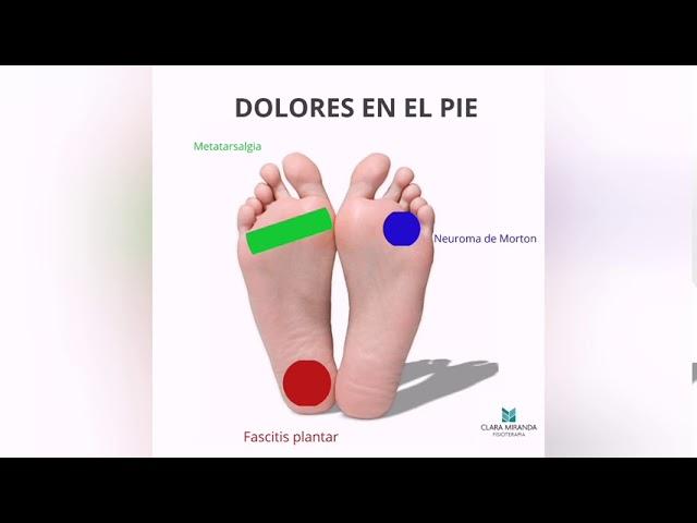 Patologías más frecuentes en el pie y su zona de dolor