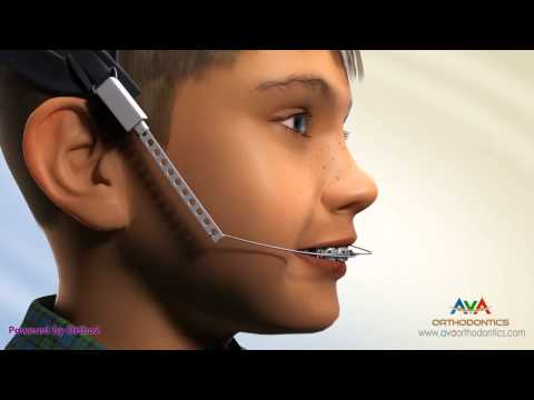 Overjet (AKA Overbite) Treatment by Headgear - Orthodontic Device