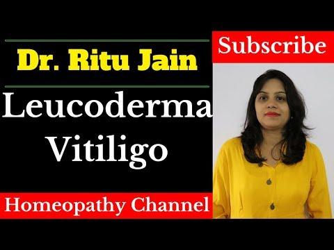 Leucoderma Vitiligo Treatment By Homeopathic Medicine
