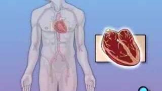 PreOp® Patient Education Permanent Pacemaker Implant Surgery