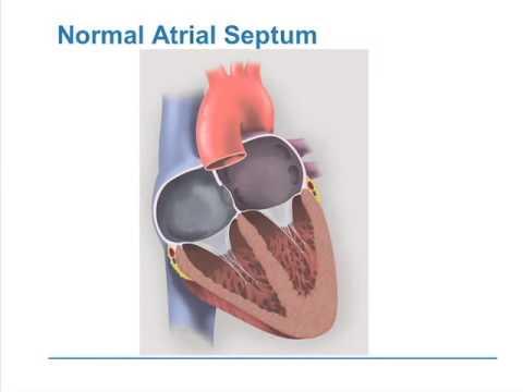 Patent Foramen Ovale (PFO) and Migraine