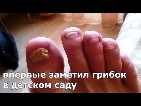 Грибок НЕ ВЕРНУЛСЯ спустя год Лечение грибка ногтей
